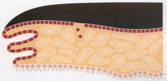 Suite à une blessure du bord du manteau externe, des cellules épithéliales se retrouvent déplacées dans le tissu conjonctif interne